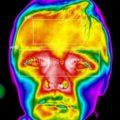 Возможности инфракрасной термографии в комплексной диагностике заболеваний челюстно-лицевой области