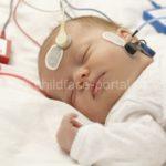 Компьютерная диагностика в хирургическом и ортодонтическом лечении детей с врожденным сквозным несращением губы и неба
