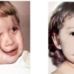 Атипичные расщелины лица